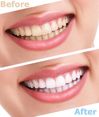 5 Tips for Whiter Teeth
