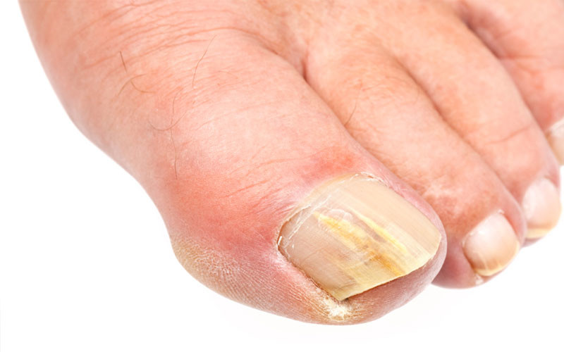 Have an Infected Toenail? Here